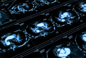 Deep Learning Poised to Transform Medical Imaging